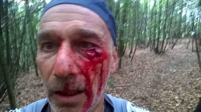 Torna l'incubo dei biker: cavo d'acciaio teso in un sentiero vicino a Genova